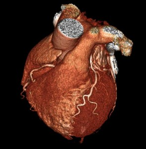 coronary angio